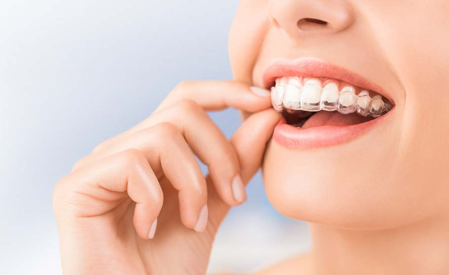 things-to-know-before-you-have-cosmetic-dentistry