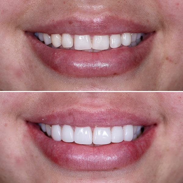 cosmetic-dentistry-(4)