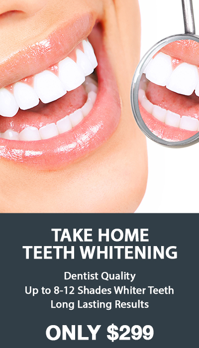 Zoom Take home teeth whitening(1)